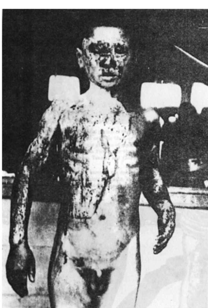 The effects of nuclear blasts and radiation exposure has had a huge influence on the modern zombie genre.