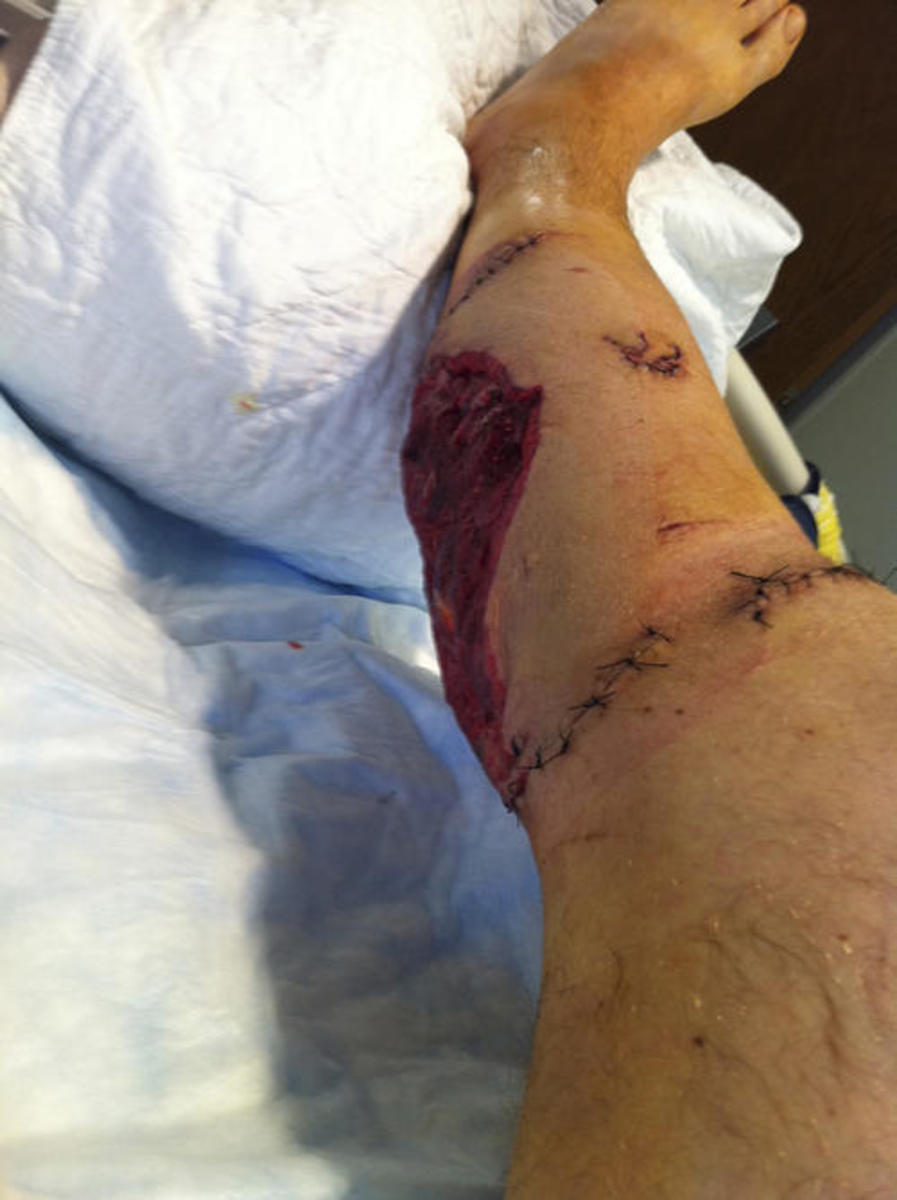 The bite to Anthony Segrich's leg