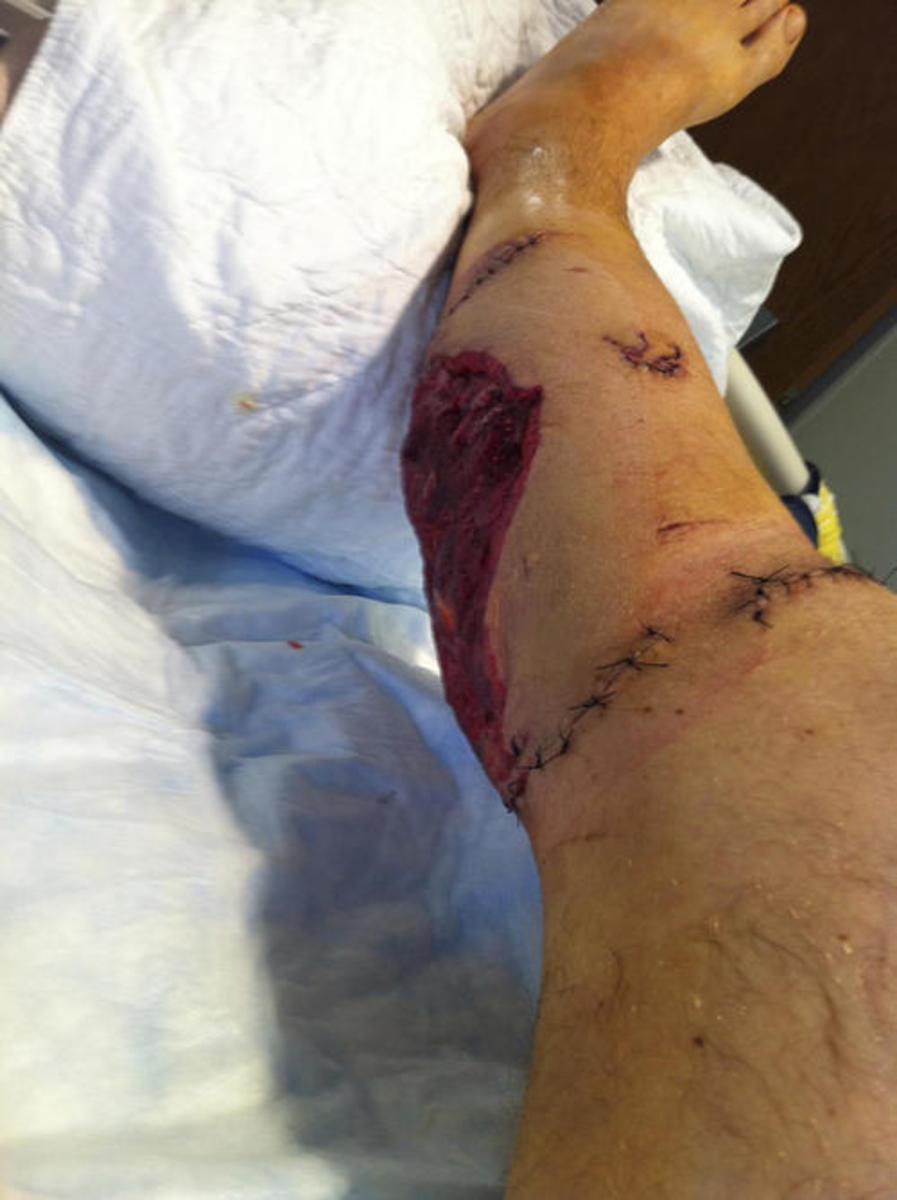 The bite to Anthony Segrich's leg