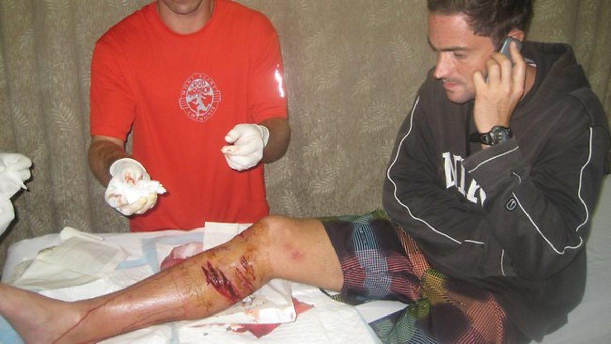 Thomas Voit's shark bites to his leg