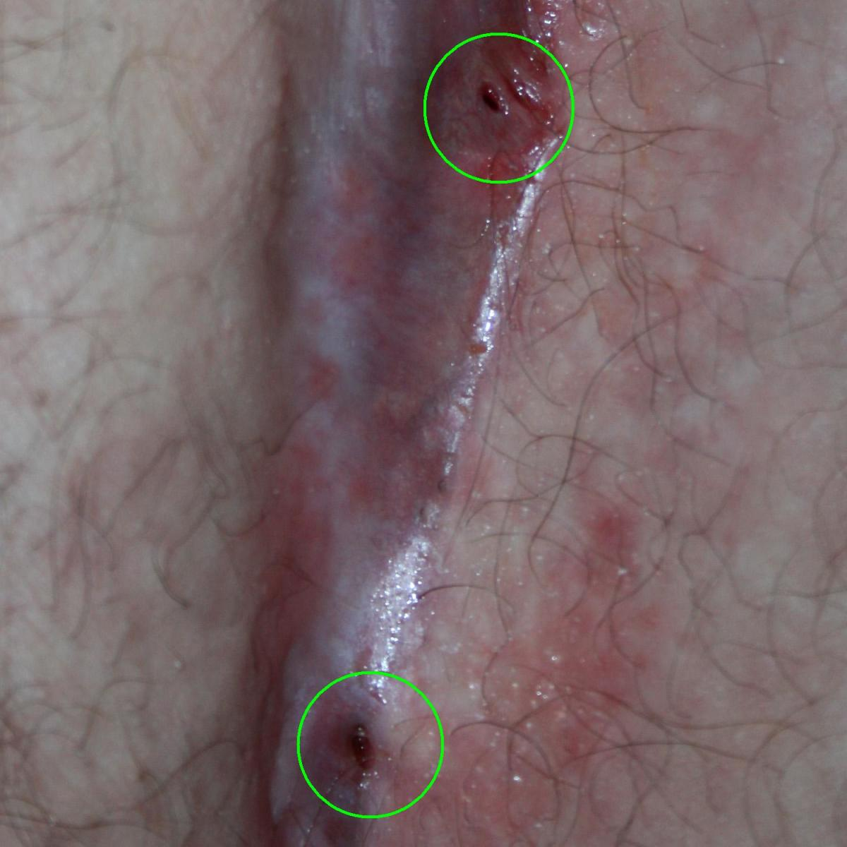 How to Treat a Pilonidal Cyst photo