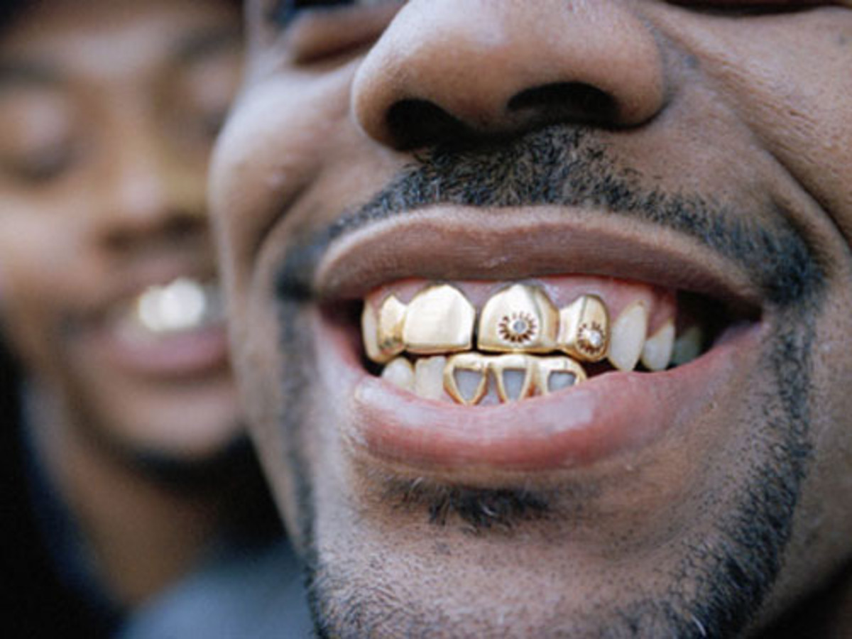 Teeth framed by solid gold grillz
