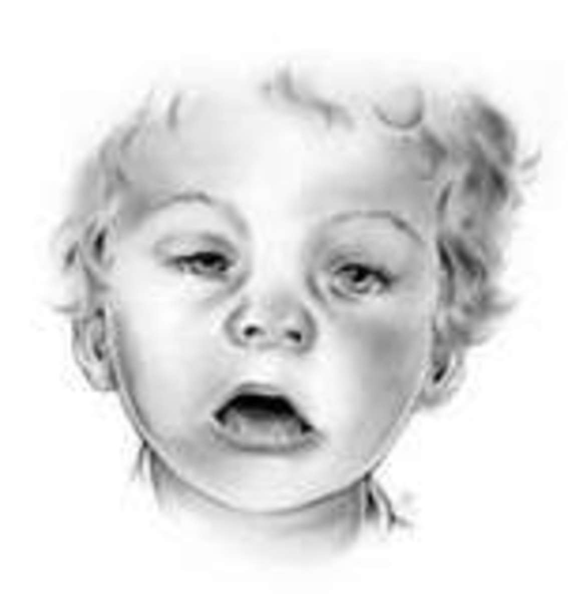A Child with Fetal Alcohol Syndrome (FAS) -My Day At School