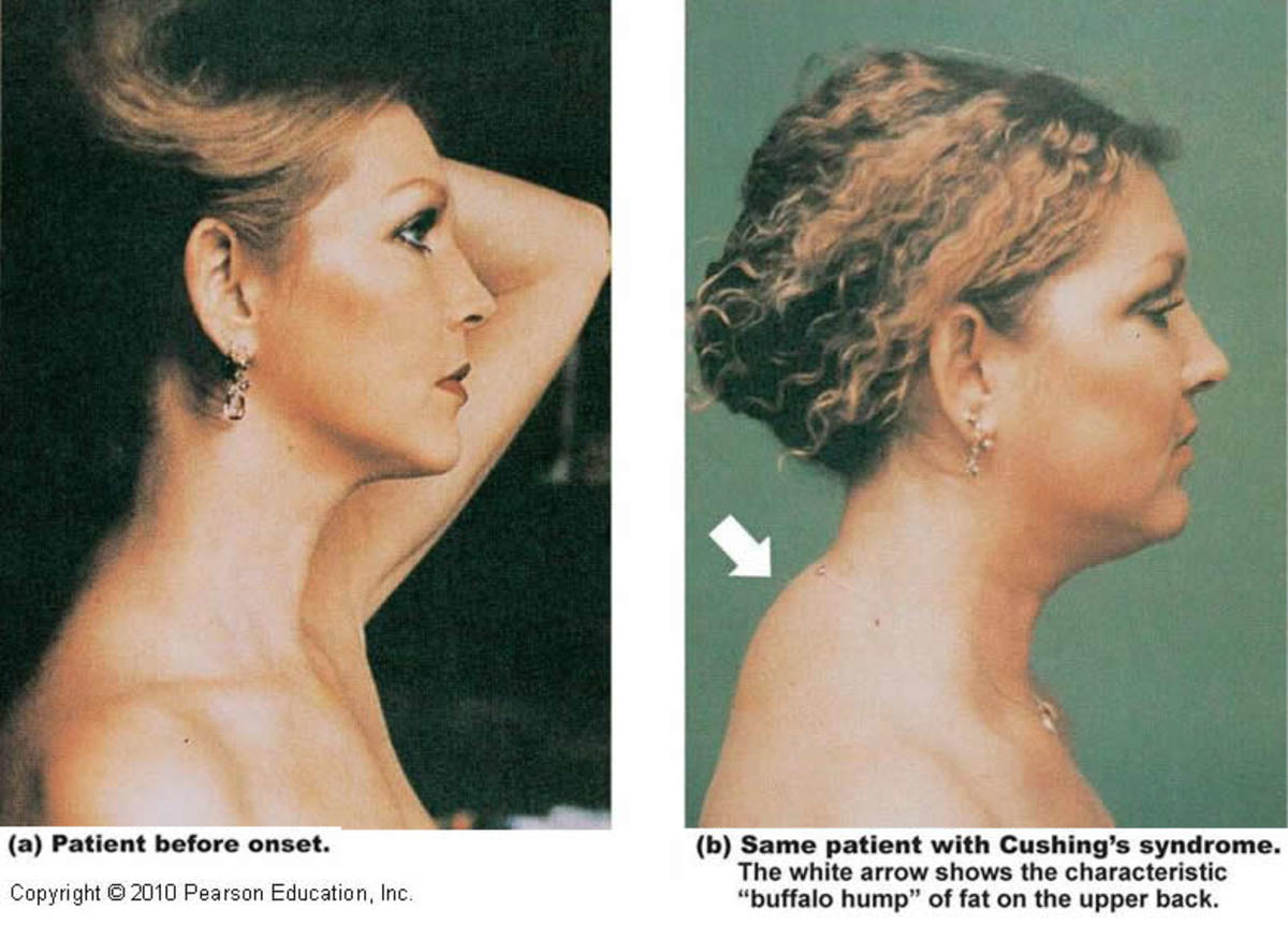 Woman diagnosed with Cushing's syndrome. Left, before onset; Right, after symptoms are evident