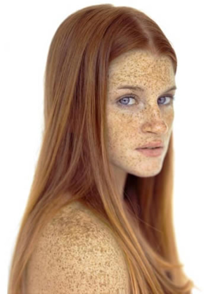 how to keep freckles from fading