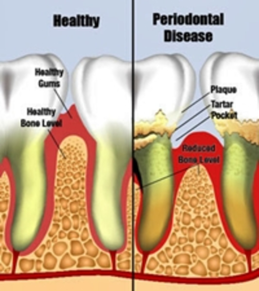 The picture on the left shows healthy teeth and gums,check for the symptoms of gum disease and visit your dentist if you spot any problems.