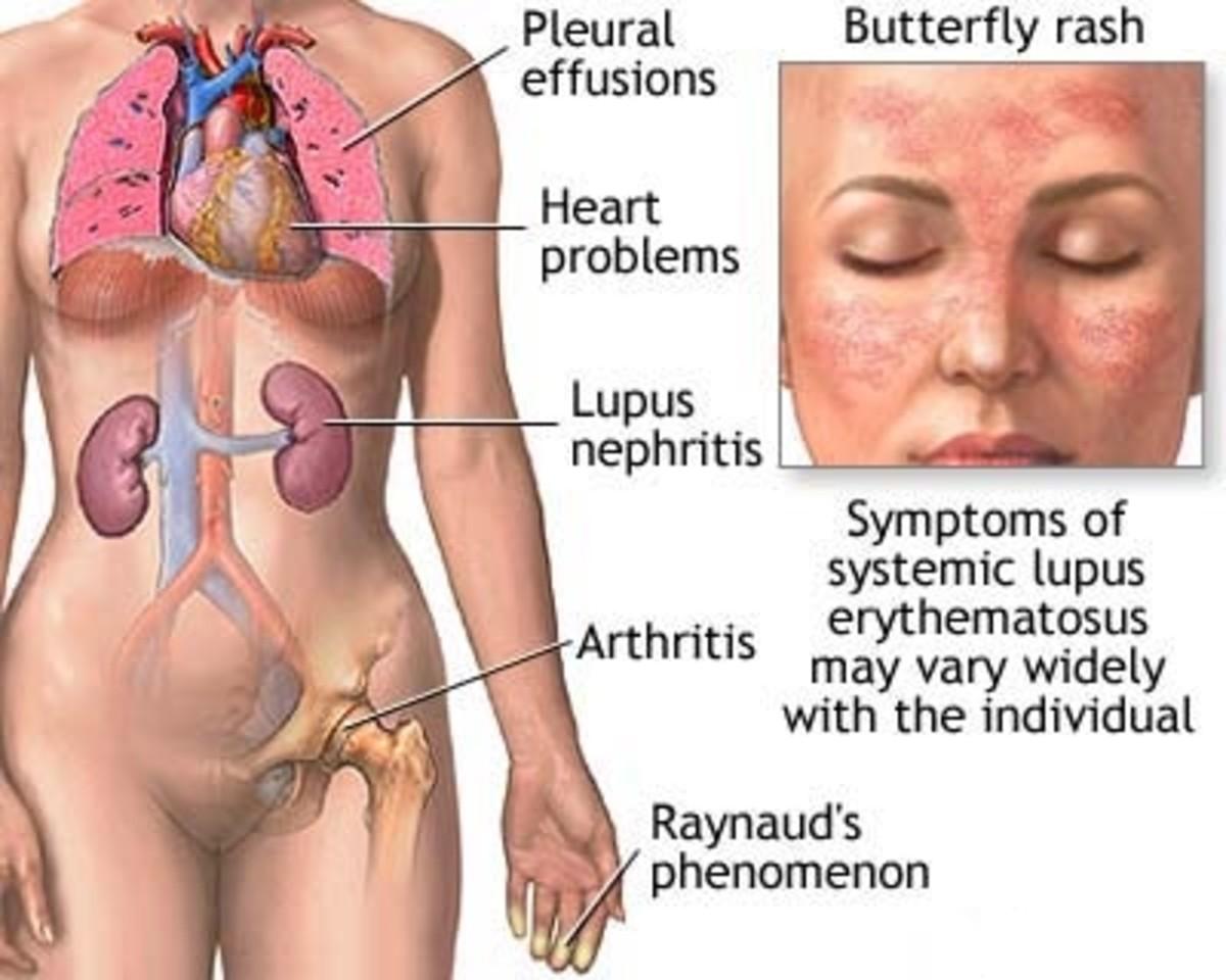 Lupus -New Hope for Lupus Disease