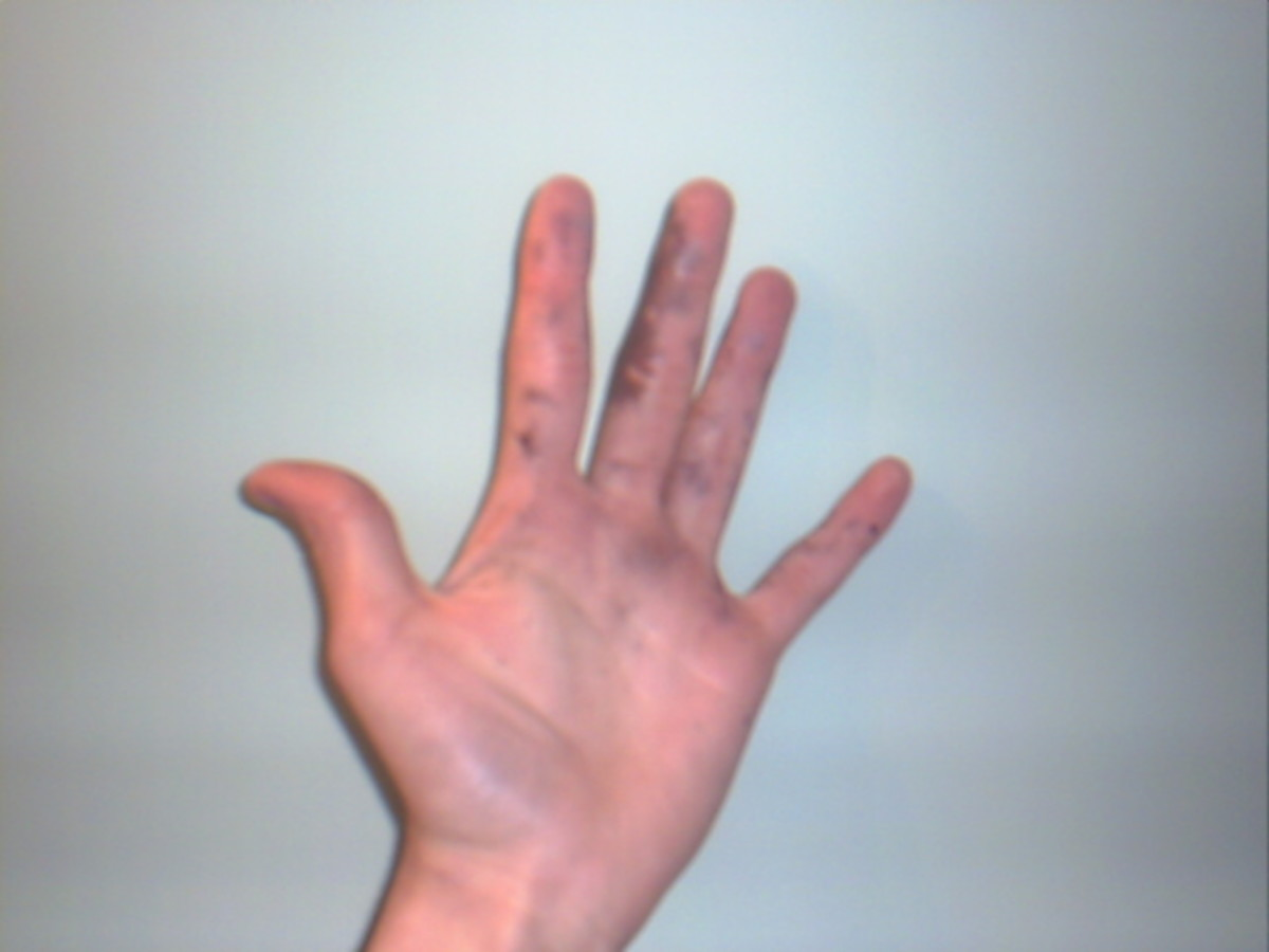 A second Degree Chemical burn, caused by silver nitrate.