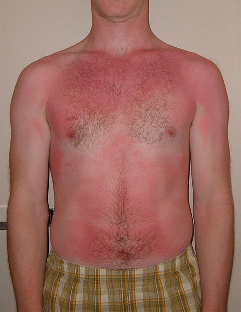 Types Of Burns And Their Treatment
