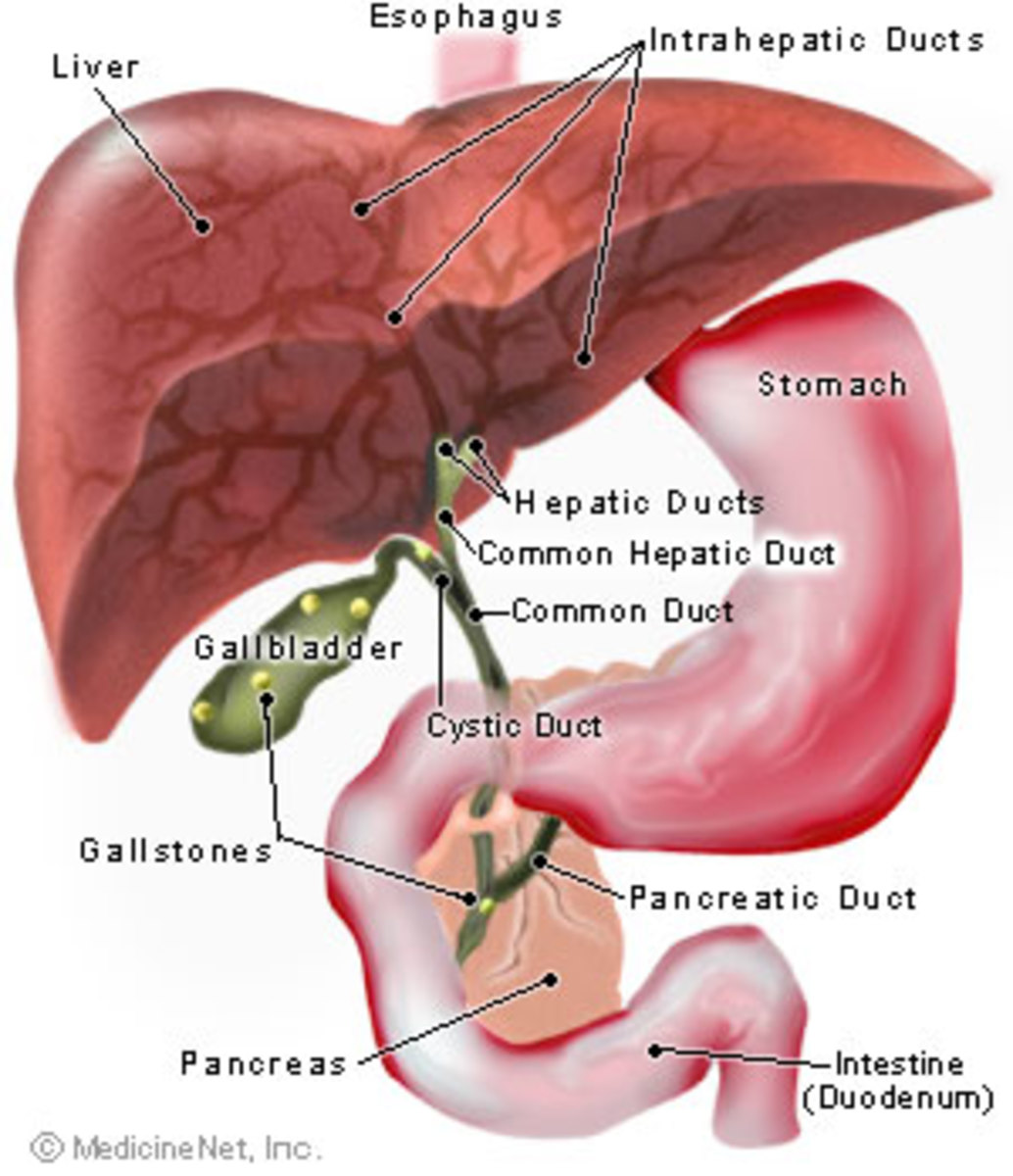 Foods you can eat with gallstones