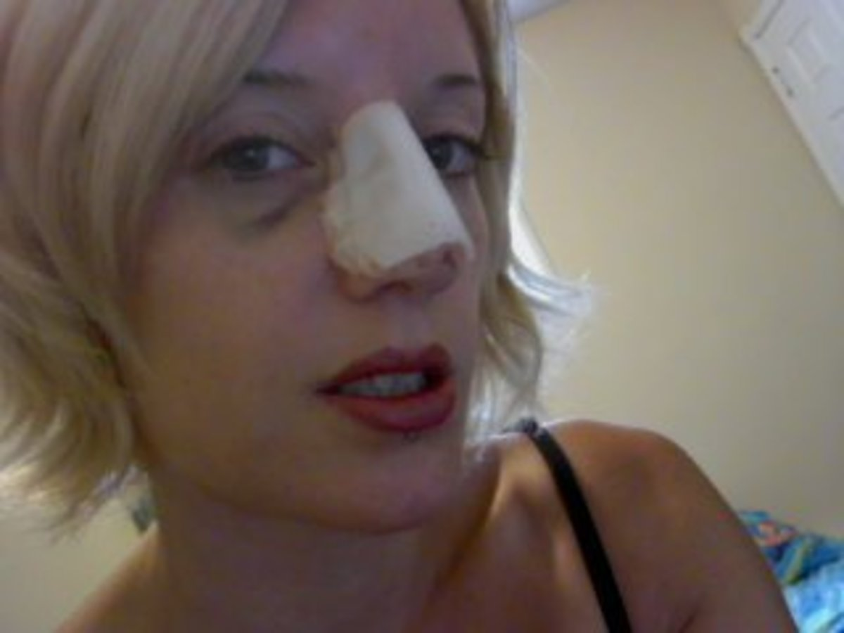 my-experience-with-septoplasty