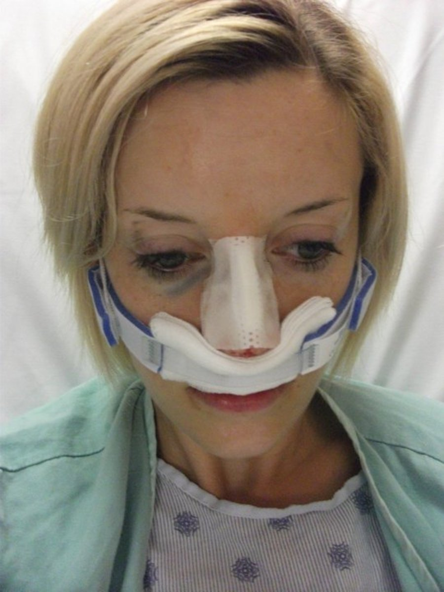 My experience with Septoplasty surgery