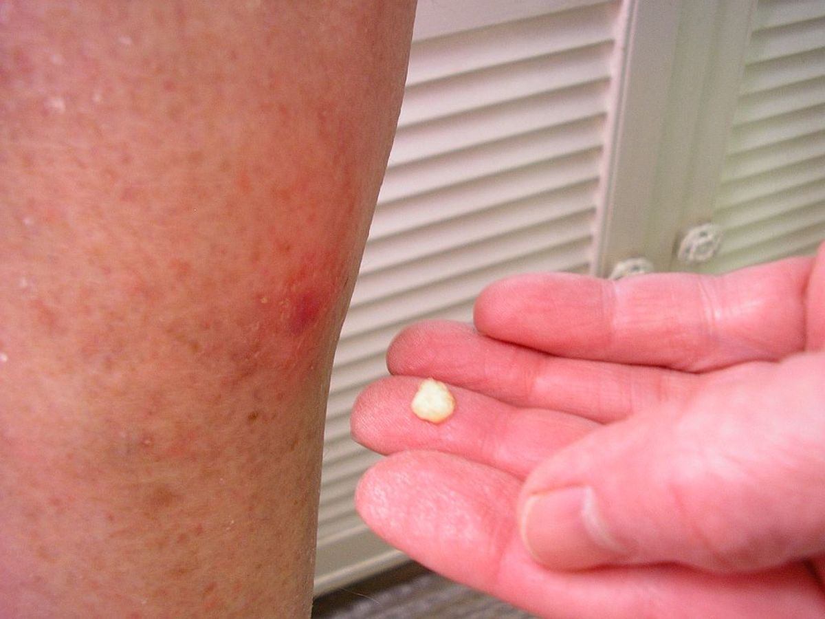 Food Grade Hydrogen Peroxide Treatment Removes Solar Keratosis