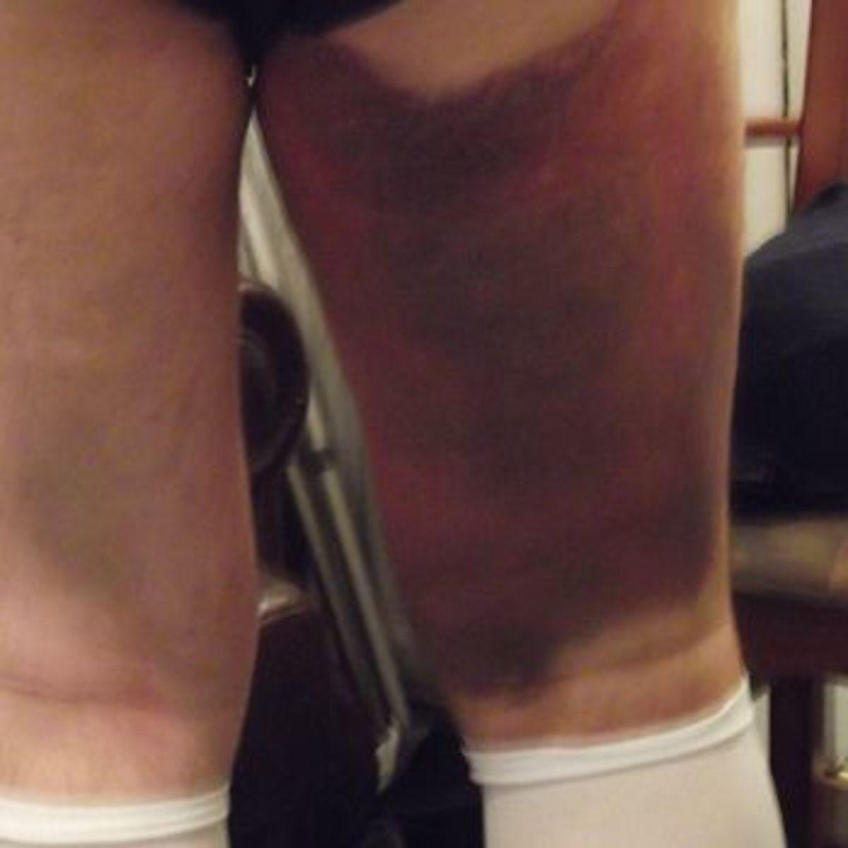 bruising after TKR