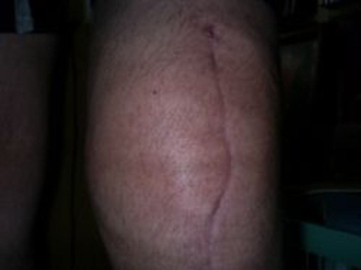 complete knee replacement scar