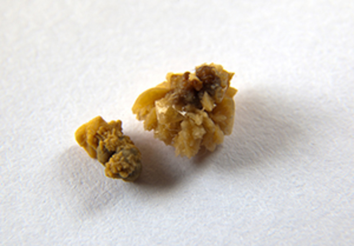 Signs And Symptoms Of Kidney Stones And Kidney Stone Pain