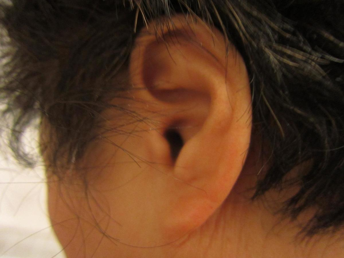 5 Simple Tinnitus Remedies to Relieve Ringing in the Ears | HubPages