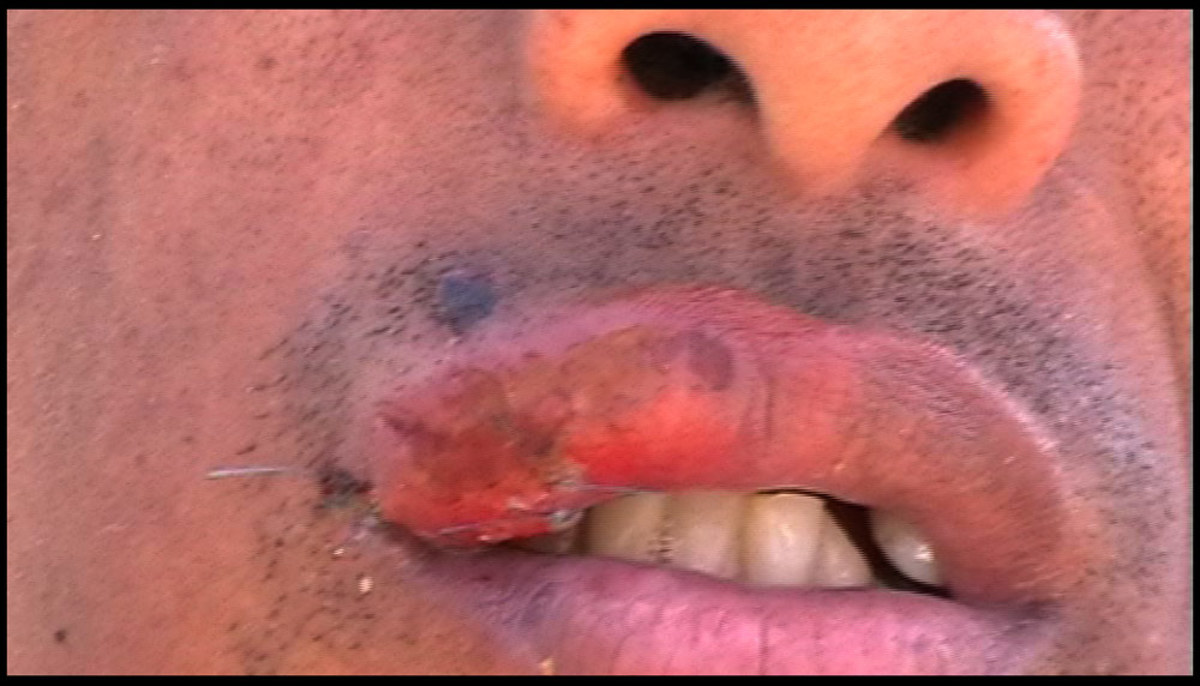 Randal Adonis: Shot in the mouth at point blank range by Hellen Zille's metro police