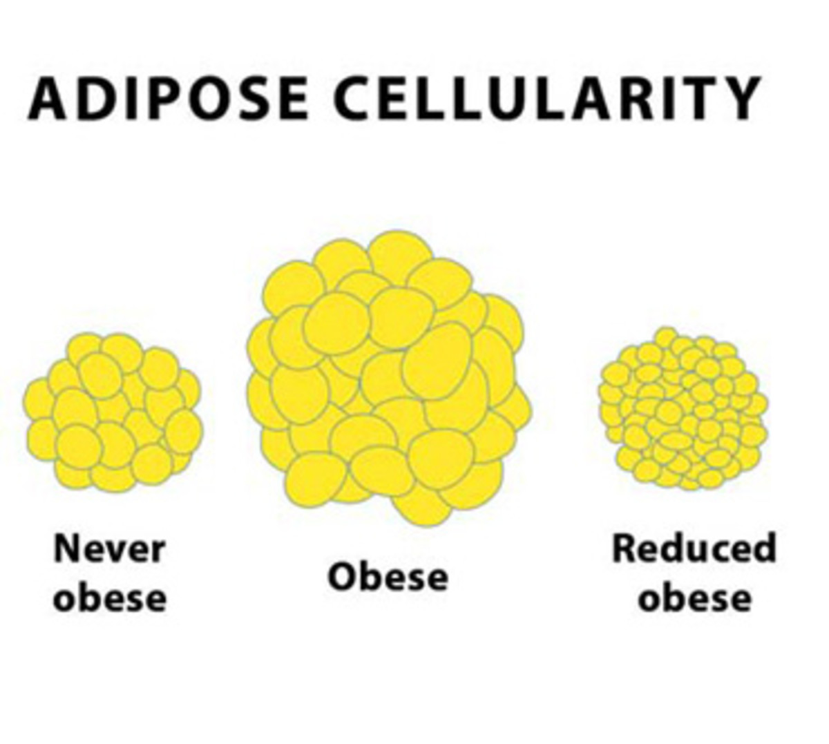 And example of fat cells.  Notice how, after obese, the number of cells remains high.  However, by shrinking the fat cells, they can take up just a little space as the never obese example.