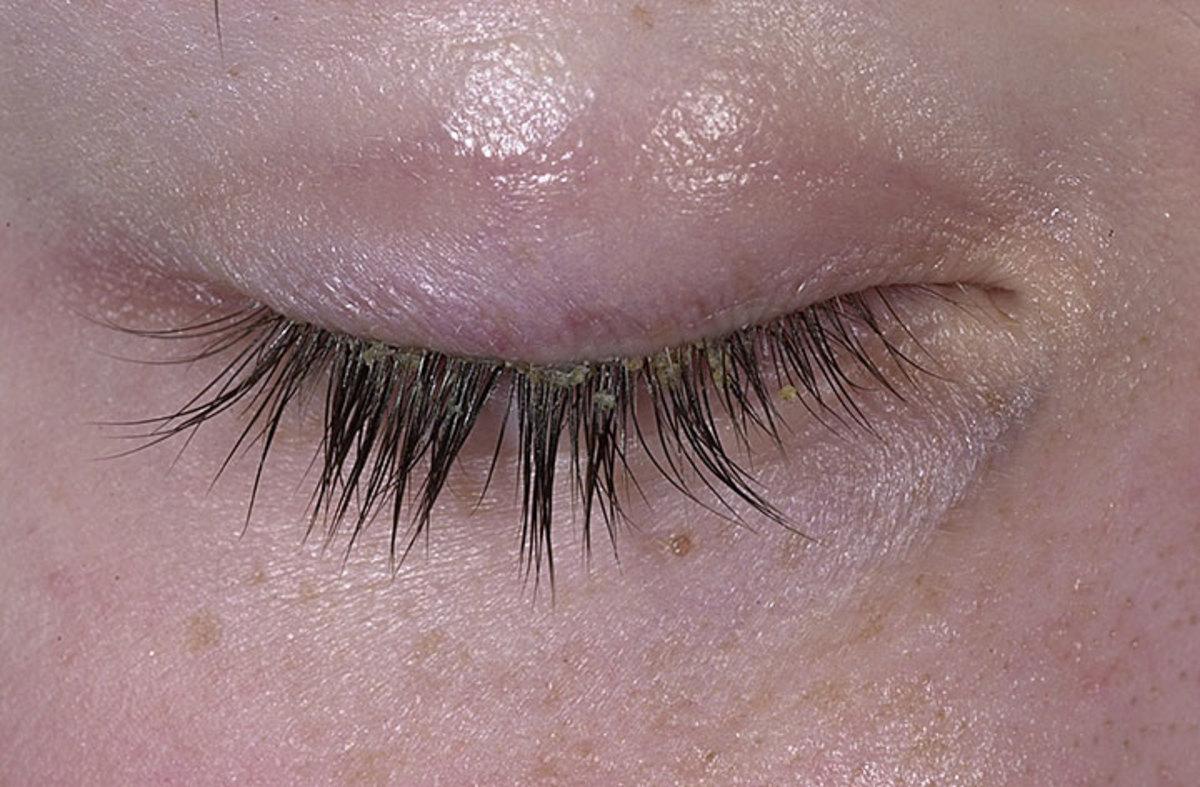 An example of Seborrheic Dermatitis