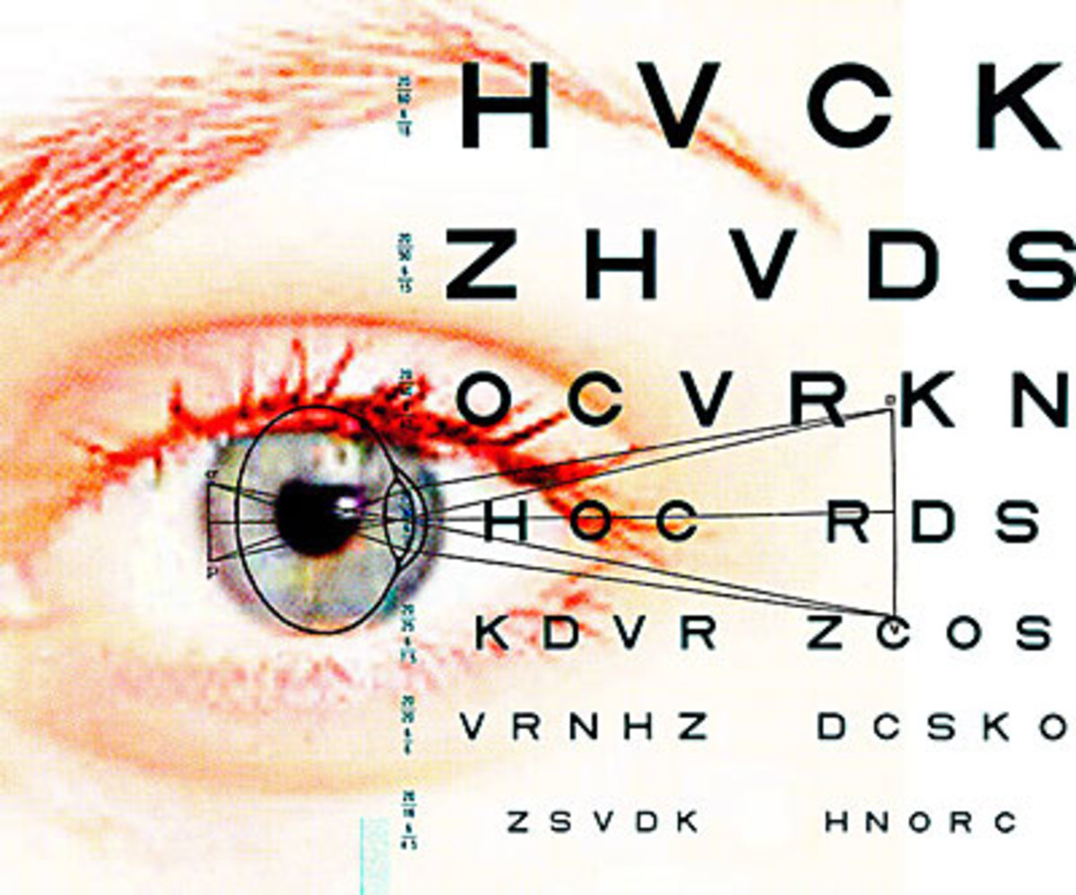 Lasik surgery - Choosing to see without glasses