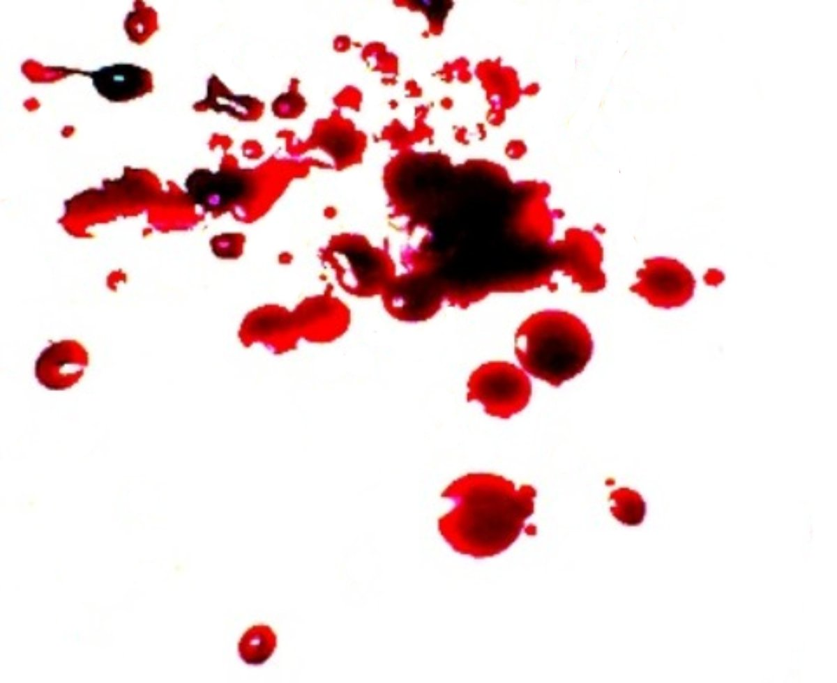 obsessed-with-blood-true-stories-of-blood-obsession-and-blood-lust