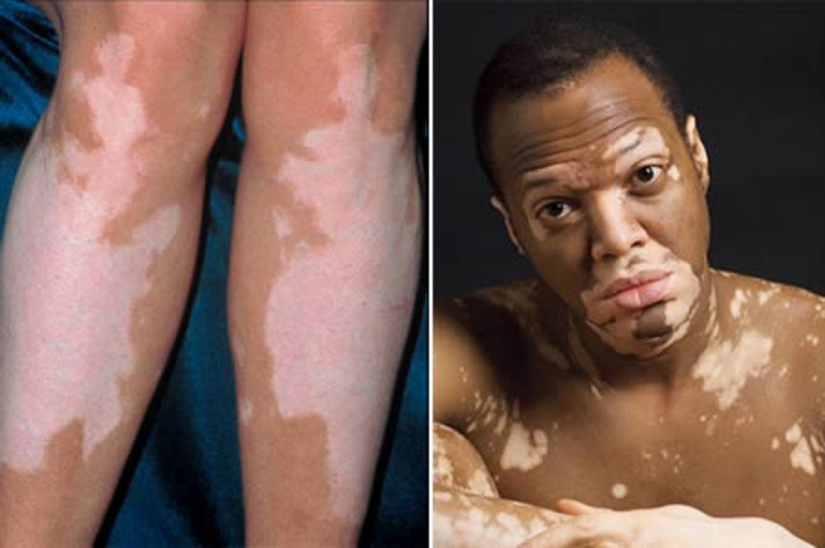 A skin condition called mosaicism is evident in some chimeras.
