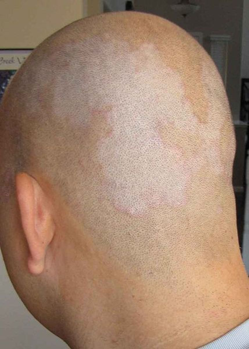 On Dandruff, Seborrhoeic dermatitis, head shaving and permanent hair loss