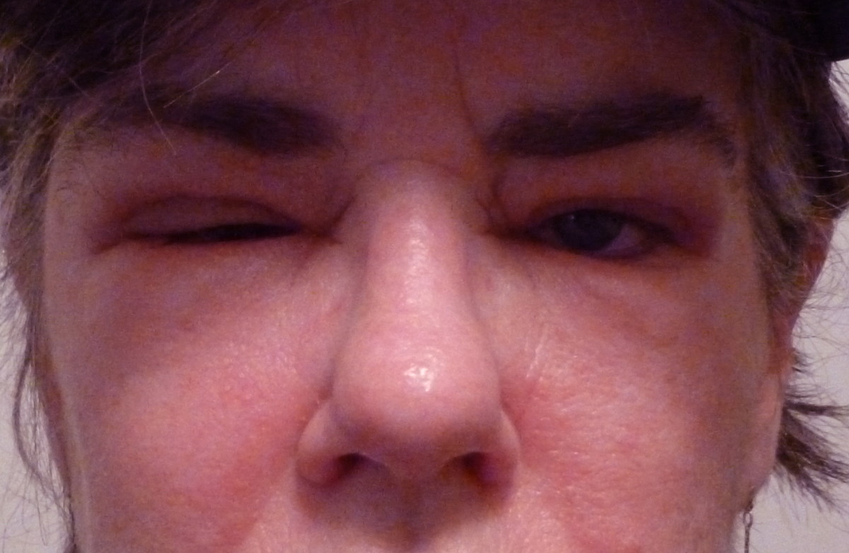 both eyes swollen shut