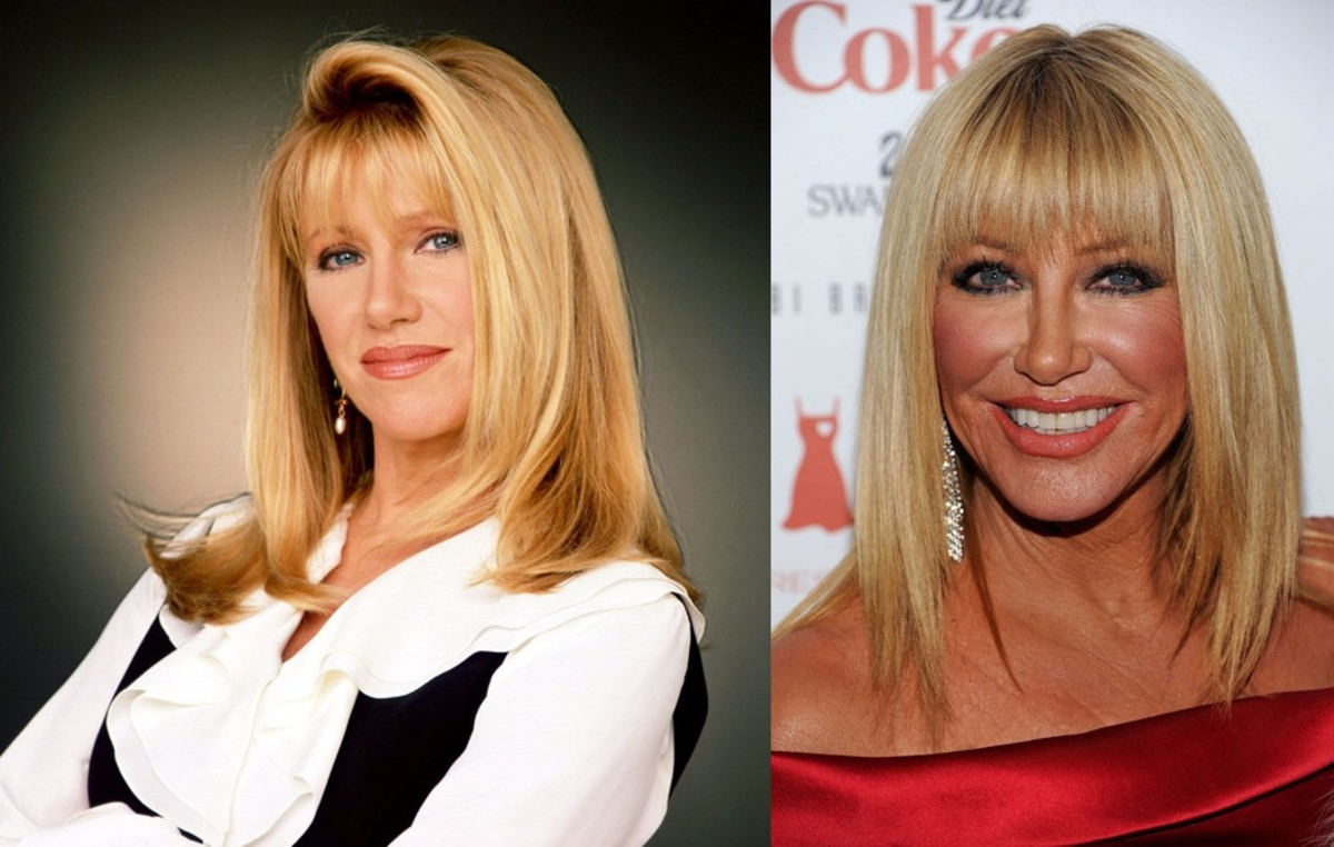 Suzanne Somers: Then and Now