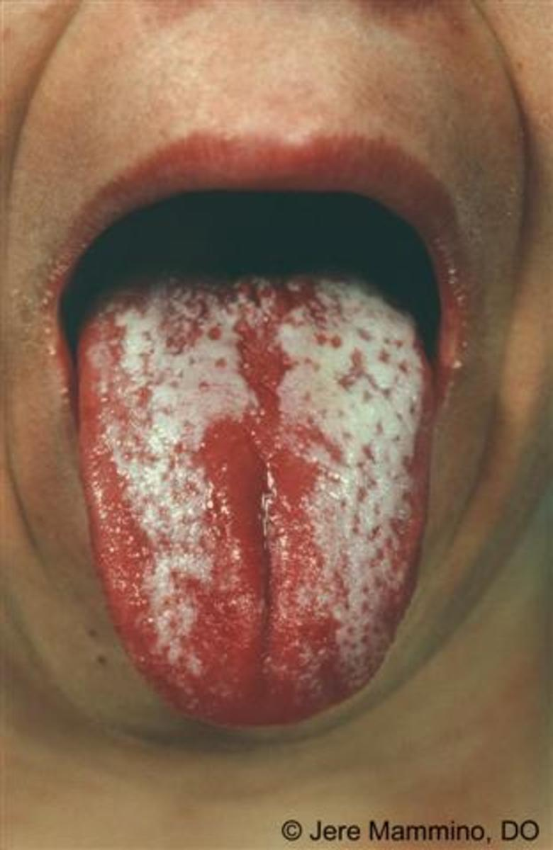 Bacteria build up on scarlet tongue