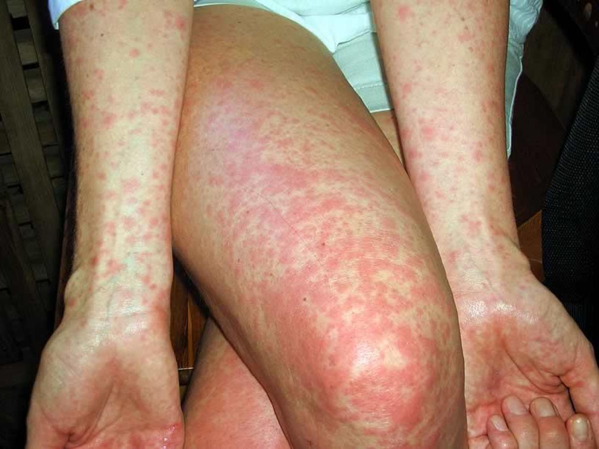 Rash on legs and arms