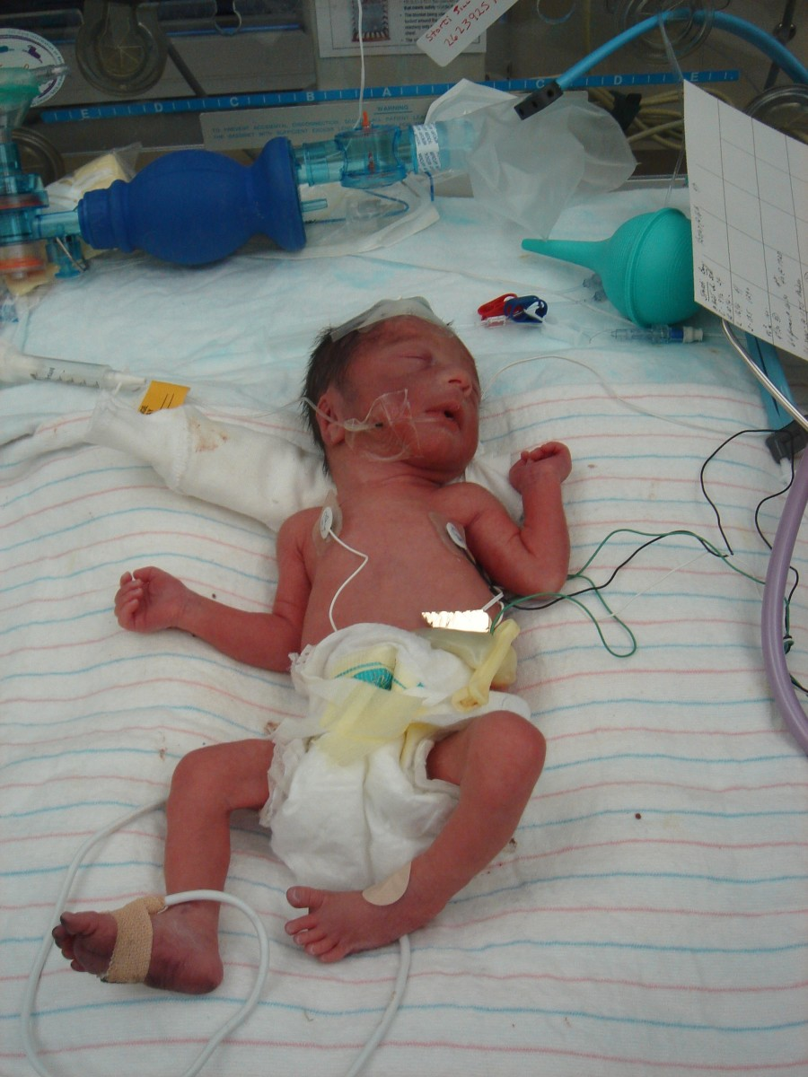 Our miracle baby... A story of having a premature baby.
