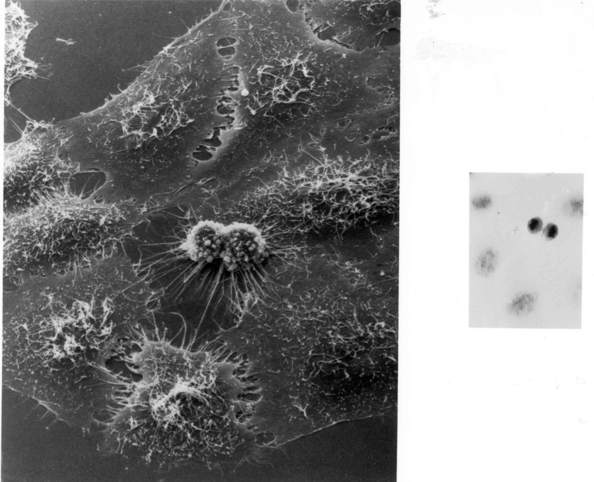 Perhaps slightly more relevent to cytology - two micrographs of the same dividing HeLa cell. On the left is an electron micrograph, on the right the same image under a powerful light microscope