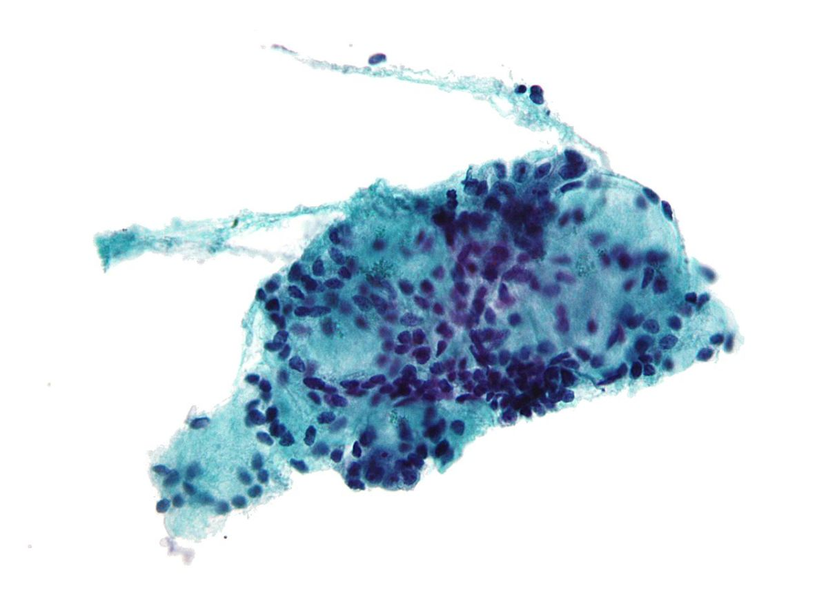 Adenoid cystic carcenoma. The careful study of the morphology (shape and visible characteristics) of cells is a key part of the diagnostic process.