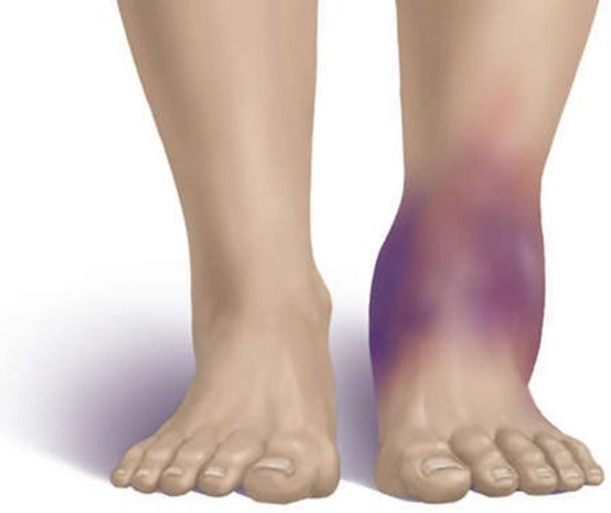 orthopedic-hematoma