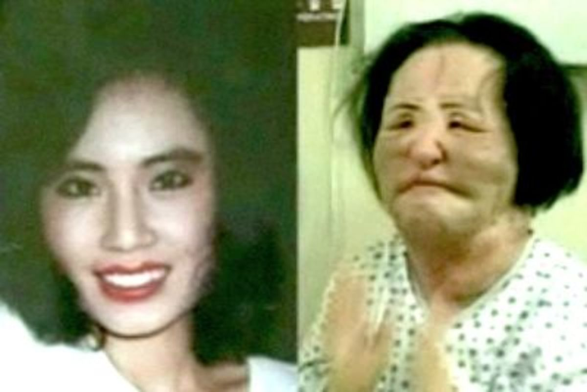 Before any surgeries and after her correction surgery, paid for by donations.