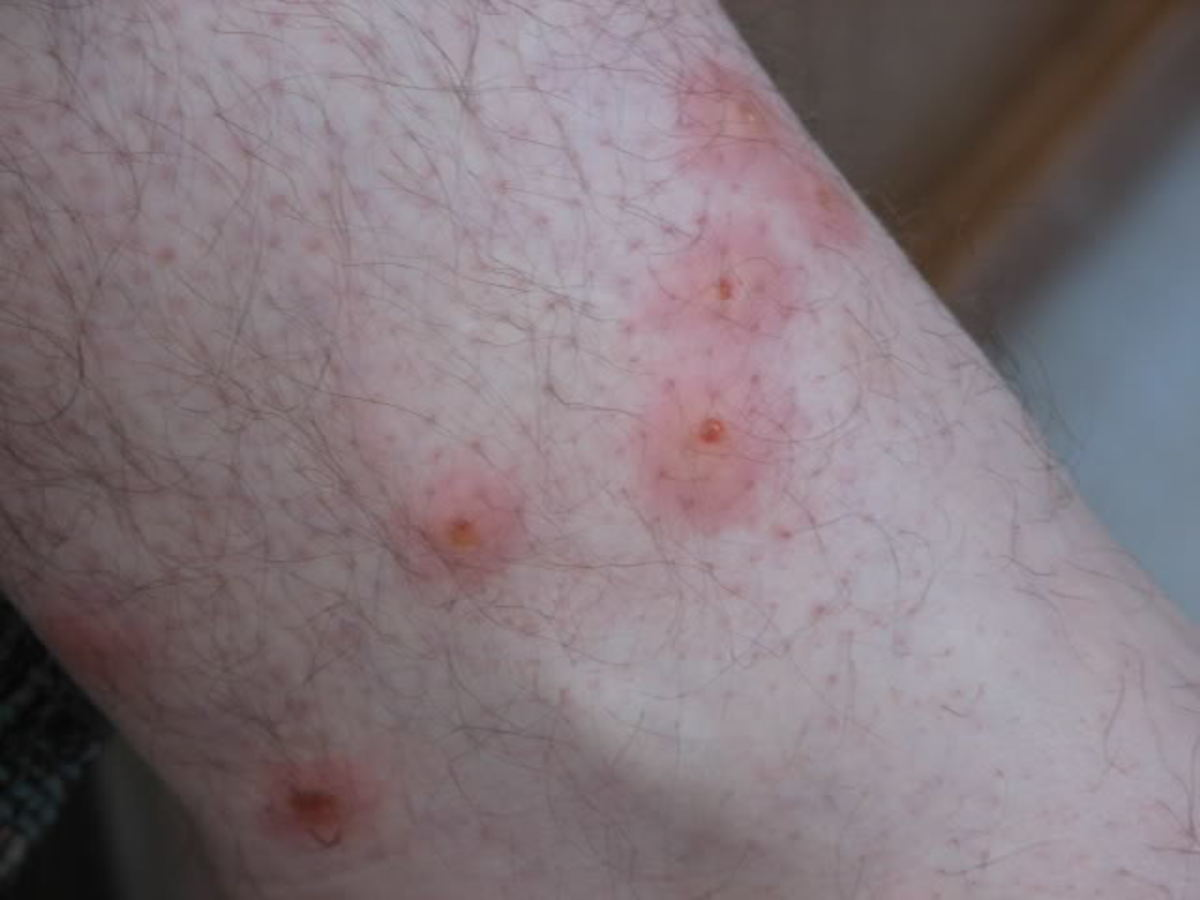 Chigger bites sometimes are more irritating than a mosquito bite because they can cause continual itching.