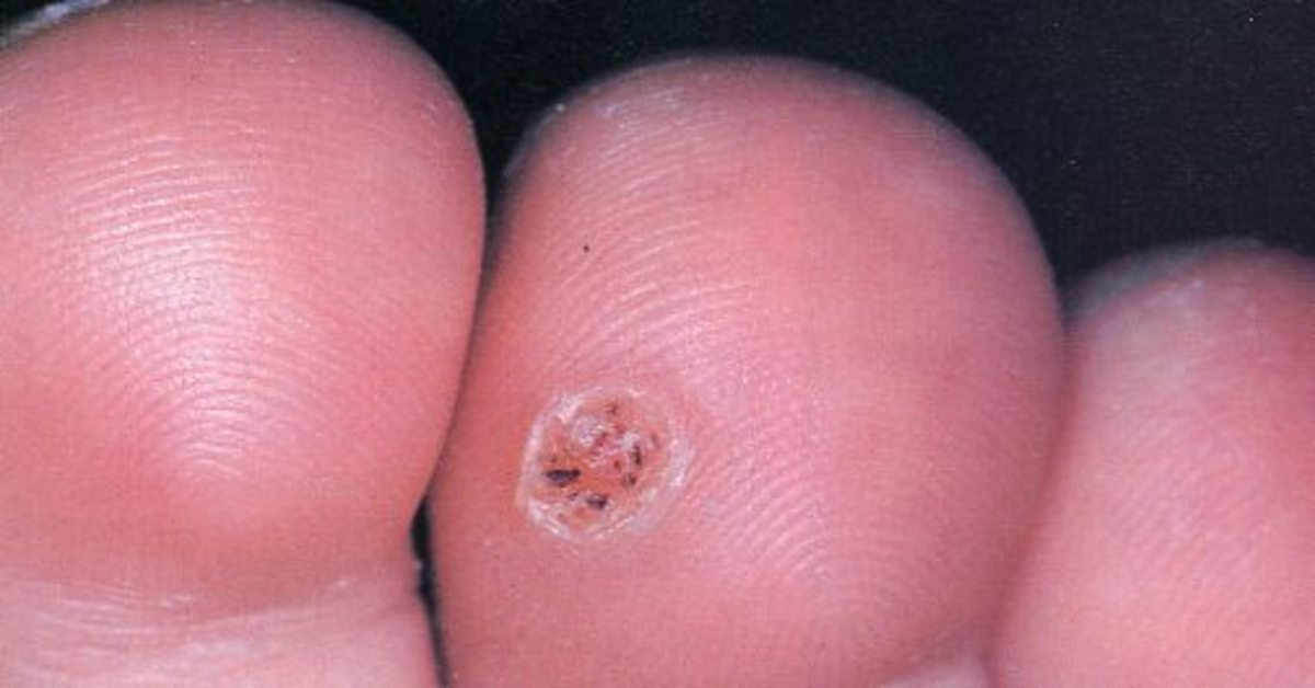 Verrucae and Warts - Rid yourself of this painful