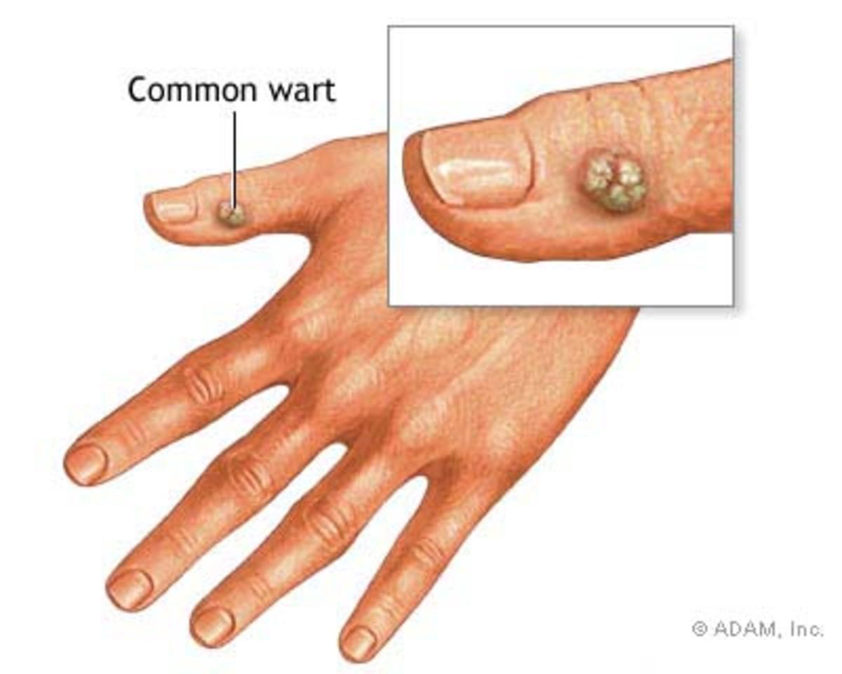 Common Wart