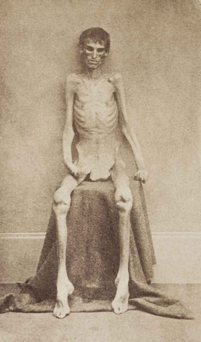 A real photo of a Union Prisoner who survived Andersonville Prison.