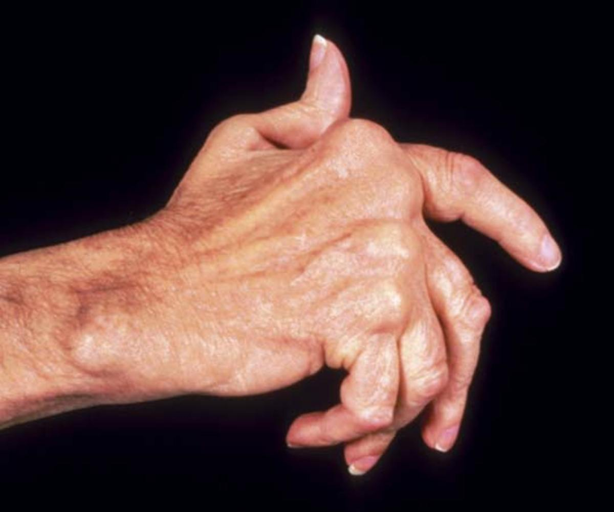 Natural Anti-inflammatory Remedies for Arthritis