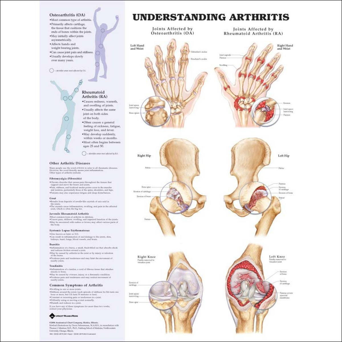 natural-anti-inflammatory-remedies-for-arthritis