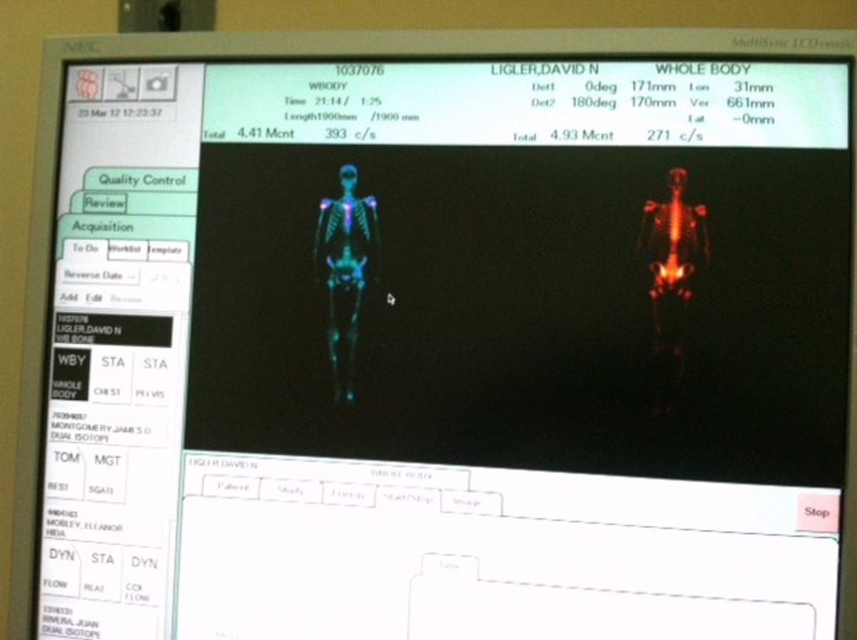 Nuclear Bone Scan for Prostate Cancer