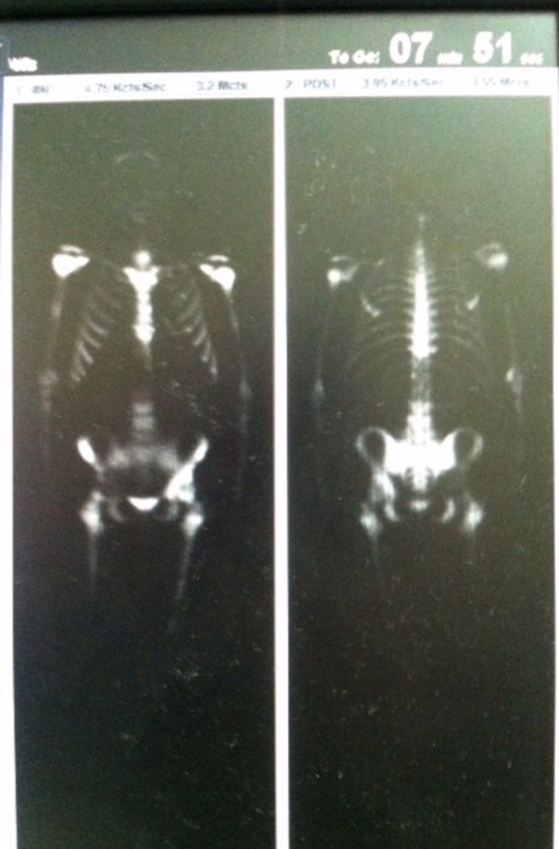 Bone Scan from Feb. 1, 2013