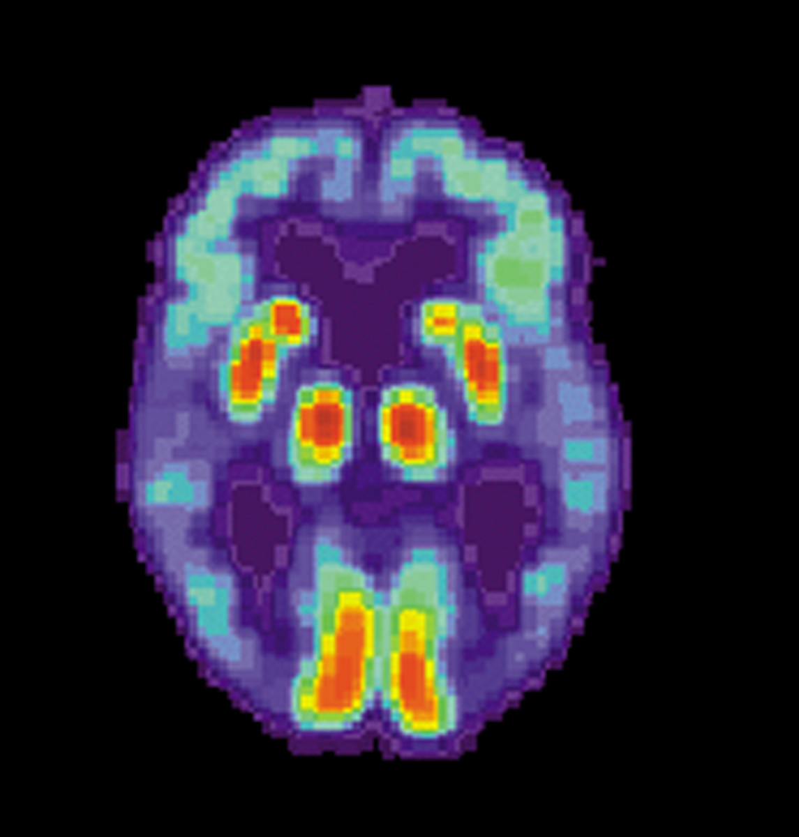 PET scan of a patient with dementia