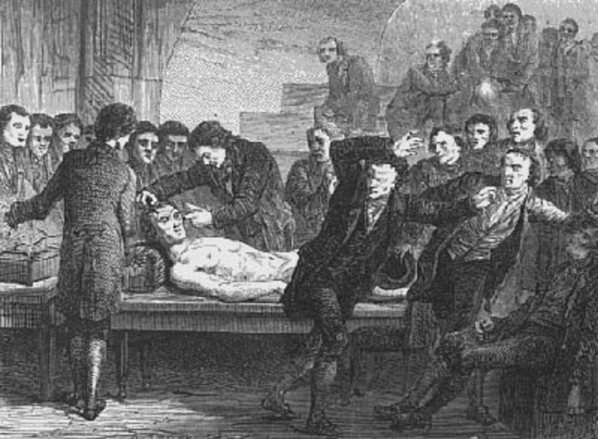 Andrew Ure applying conducting rods to the face of a corpse.
