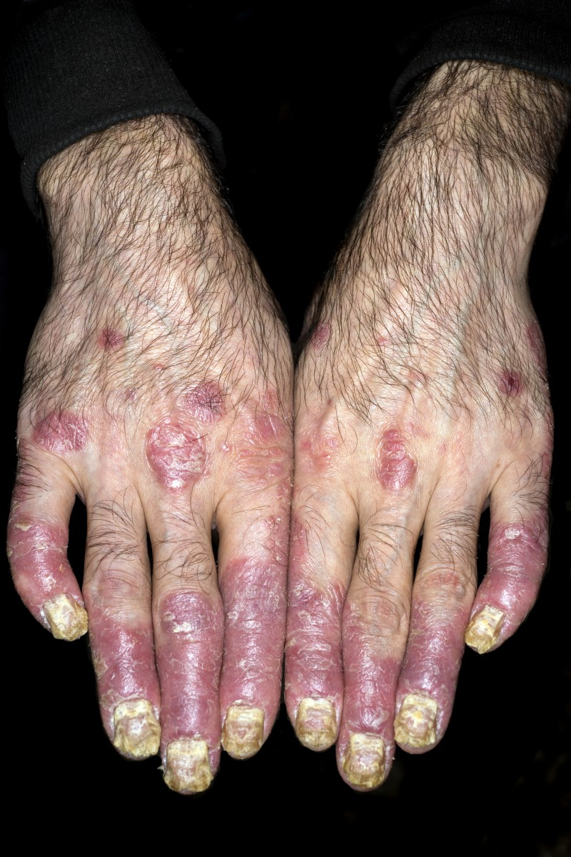 Psoriasis on hands