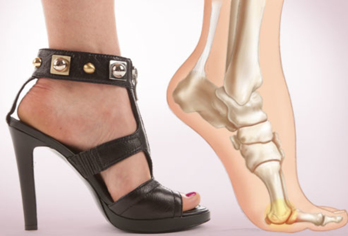 Pain caused by high heels