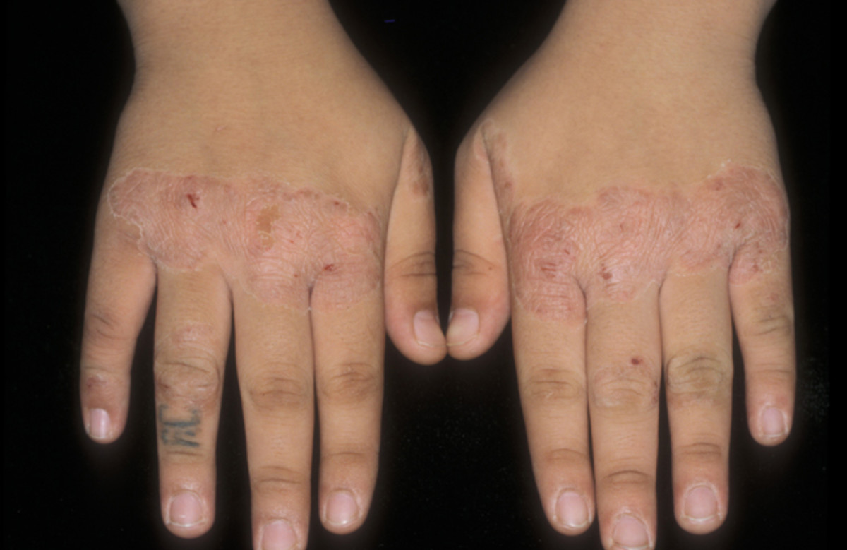 Koebner's Phenomenon on the knuckles